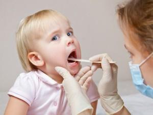 sariawan 2, obat sariawan di lidah, cara mengobati panas dalam
